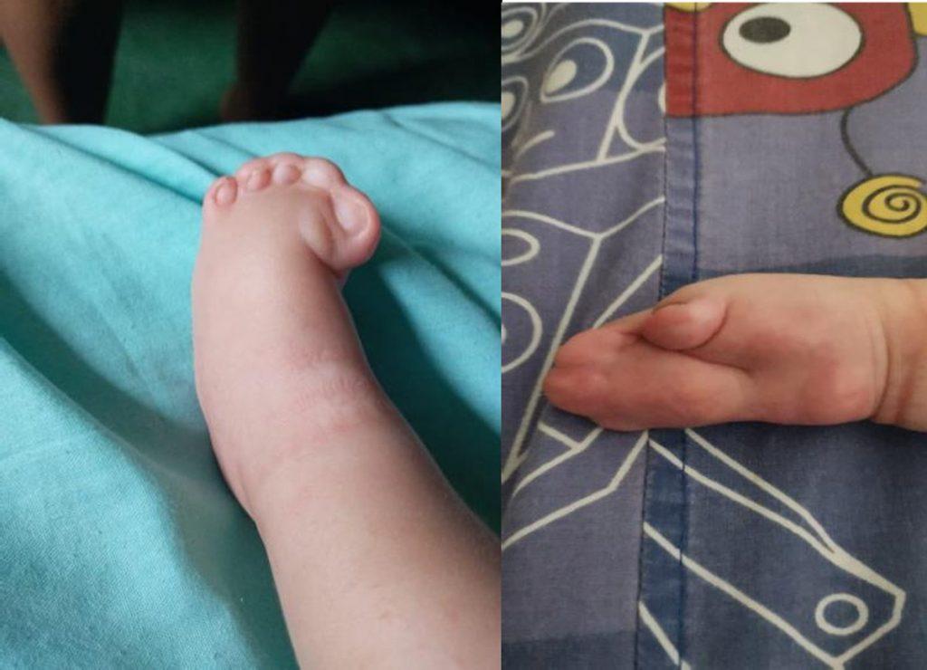 Figura 3: Sindactilia de manos y pies