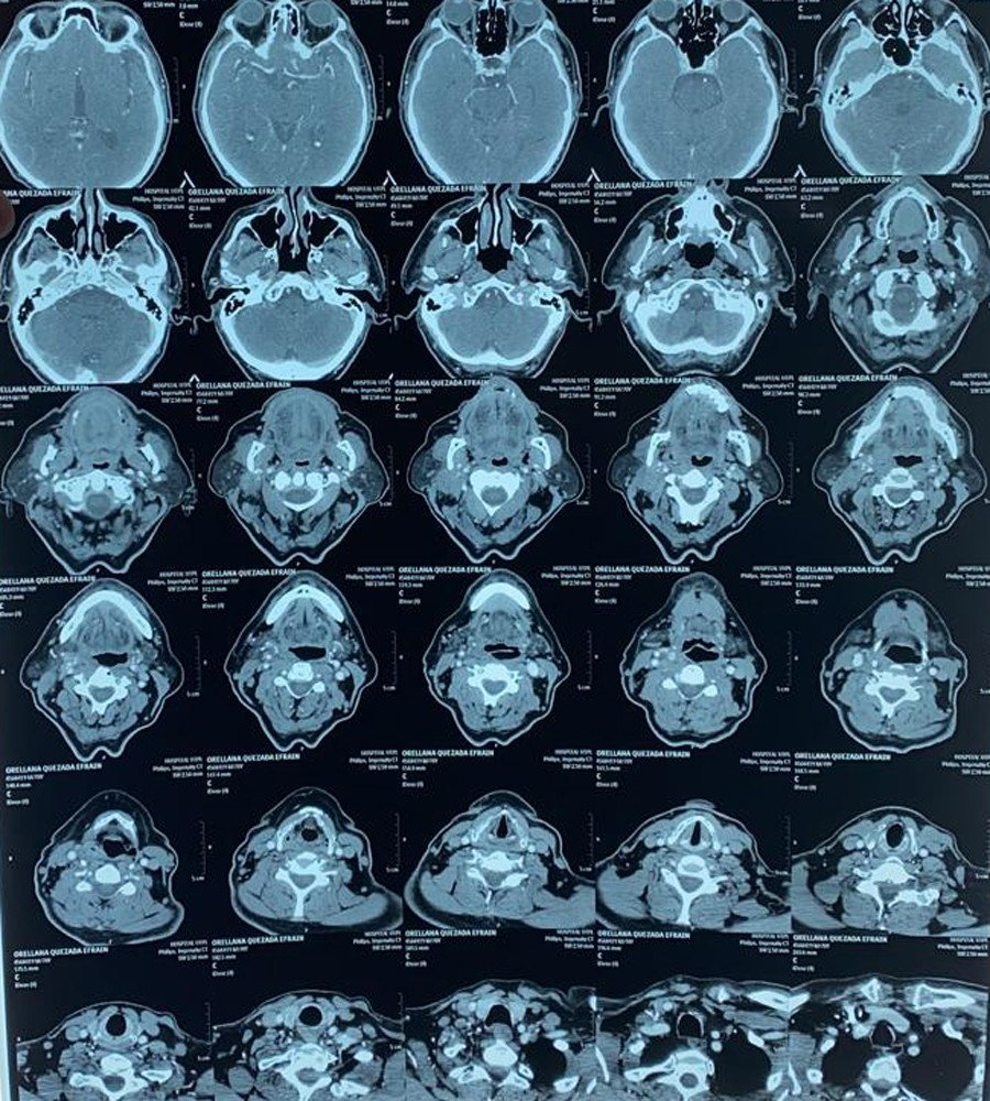 Figura 2. TAC de cuello con contraste