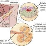 adenocarcinoma-pancreatico