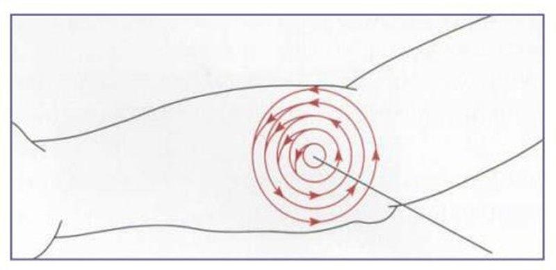 Figura 2: foto desinfección zona de punción. MANUAL DE TOMA DE MUESTRAS DE MICROBIOLOGÍA. Salud Aragón