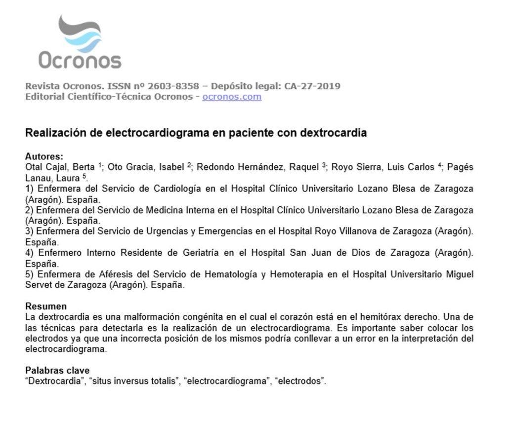 ecg-dextrocardia