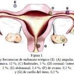 embarazo-ectopico