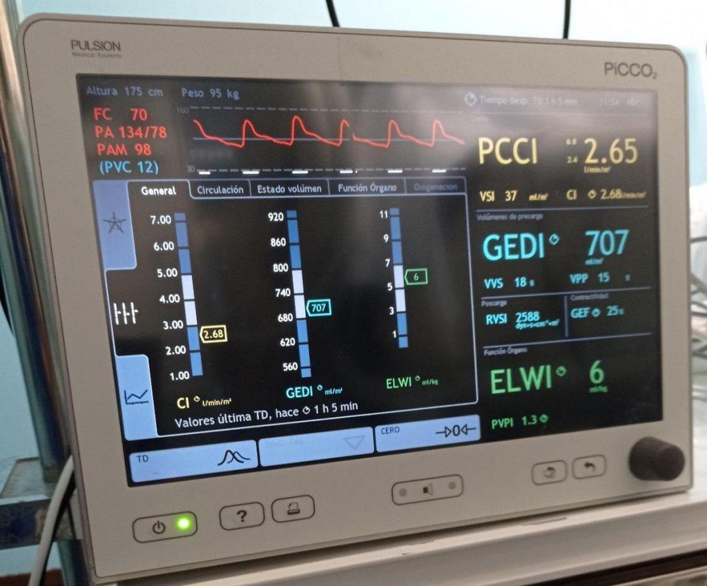 Figura IV. Monitor PiCCO (fuente de elaboración propia).