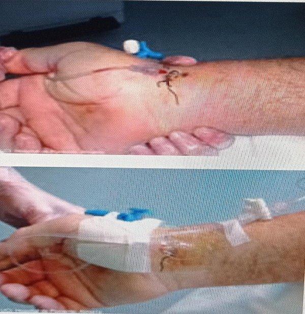 Figura VI. Técnica Seldinger para arteria radial (Empresa pública del hospital de Poniente 2015).