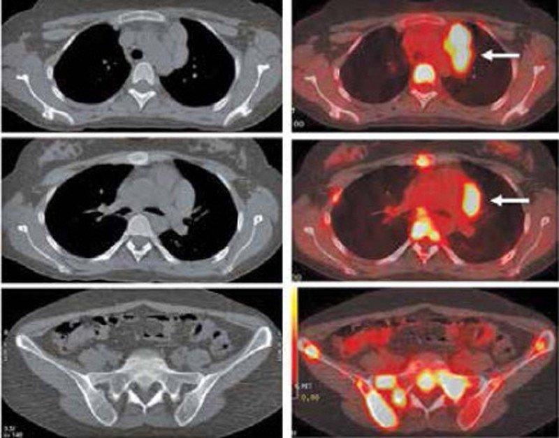 TC Y PET-TC paciente con linfoma de Hodgkin de localización mediastínica
