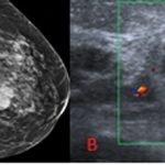1-carcinosarcoma-mama-mamografia