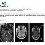 tumores-pontocerebelosos