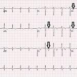 3-electrocardiograma-sindrome-wellens-inversion-onda-T-V2-V5