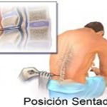 1-puncion-lumbar-sentado
