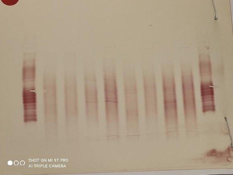1-tecnicas-diagnosticas-esclerosis-multiple-bandas-oligoclonales