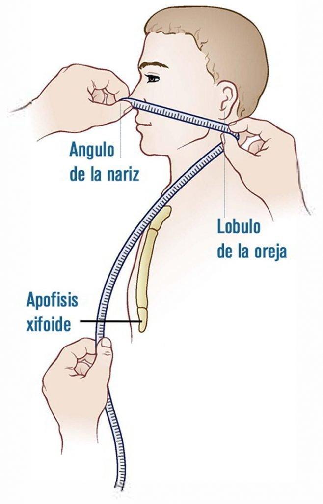 6-tecnica-sonda-nasogastrica-sondaje-gastrico