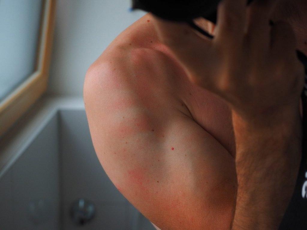 picor-piel-dermatitis