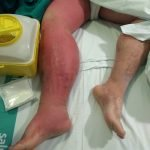 manejo-sindrome-compartimental-septico