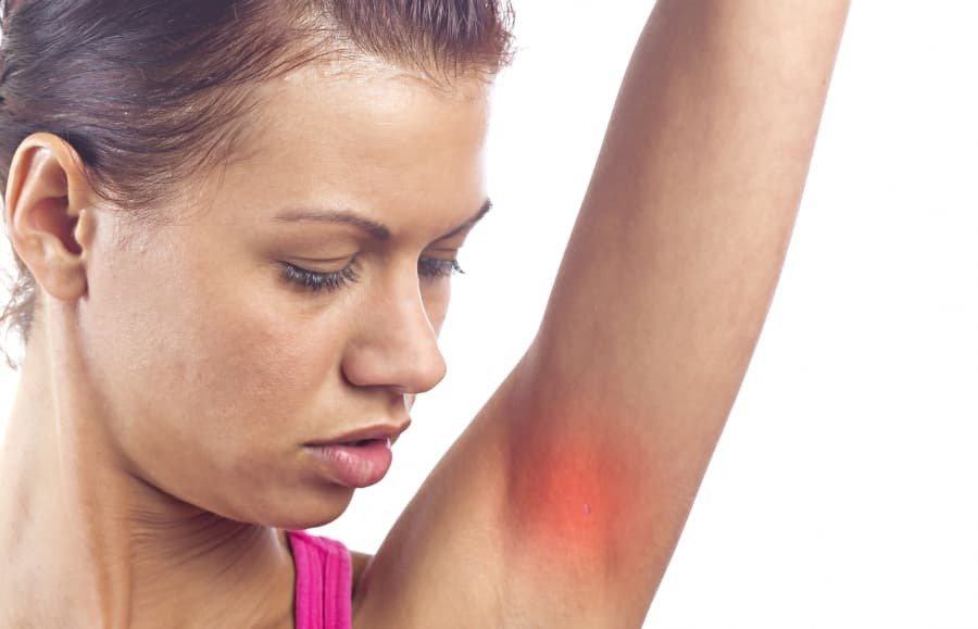 Dermatitis axila