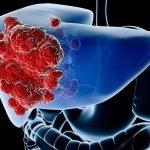 carcinoma-hepatocelular-pruebas-diagnostico
